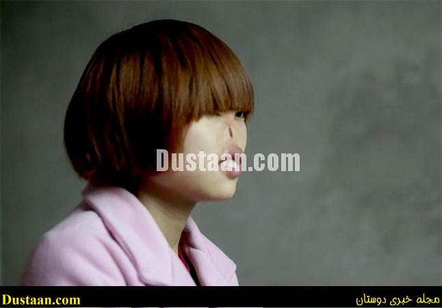 www.dustaan.com دختری که موش ها بینی اش را جویده بودند، به ارزویش رسید! +تصاویر
