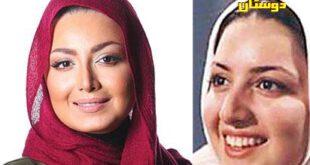 بازیگران ایرانی، قبل از عمل بعد از عمل! +تصاویر