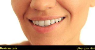 از بین بردن زردی دندان در سه سوت!