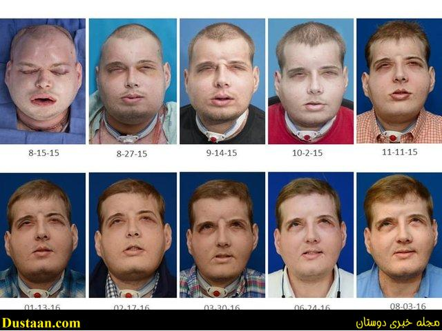 www.dustaan.com تصاویر : نتیجه بی سابقه ترین پیوند صورت پس از ۱ سال