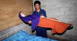 زن جوانی که تبدیل به یک تکه چوب خشک شد! +تصاویر