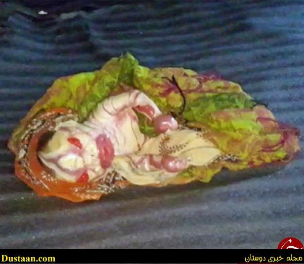 www.dustaan.com تولد نوزاد نفرین شده با قیافه ای ترسناک در هندوستان + تصاویر