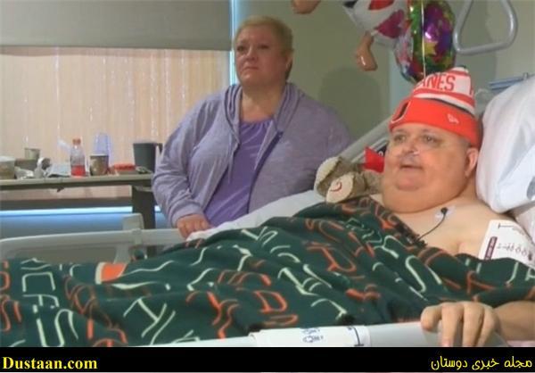 خارج کردن تومور ۶۲ کیلویی از شکم یک بیمار! +تصویر