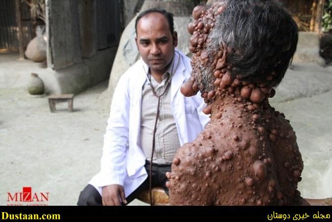 www.dustaan.com مرد حبابی، از یک بیماری وحشتناک رنج می برد +تصاویر