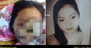 چهره این بازیگر زیبا، به خاطر عفونت سینوس از بین رفت +عکس