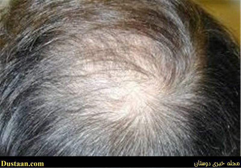 www.dustaan.com دلایل اصلی ریزش مو را بشناسید/ بهترین درمان ها برای جلوگیری از ریزش مو
