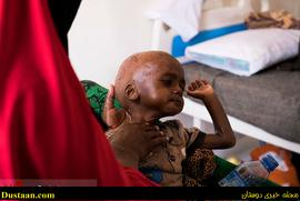 www.dustaan.com-dustaan.com- مبارزه برای زنده ماندن از گرسنگی/تصاویر