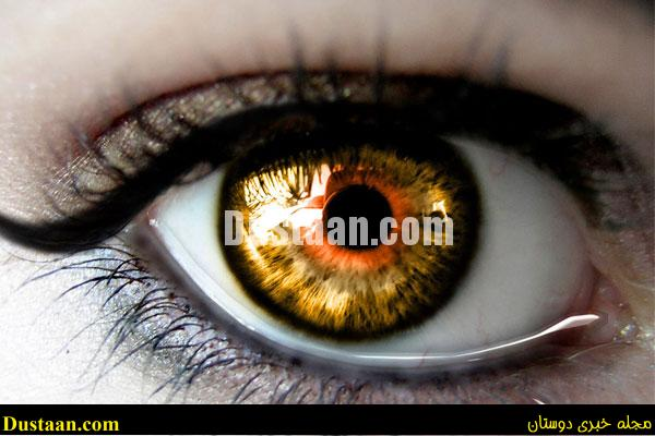 www.dustaan.com آیا «چشم زخم» واقعاً وجود دارد؟!