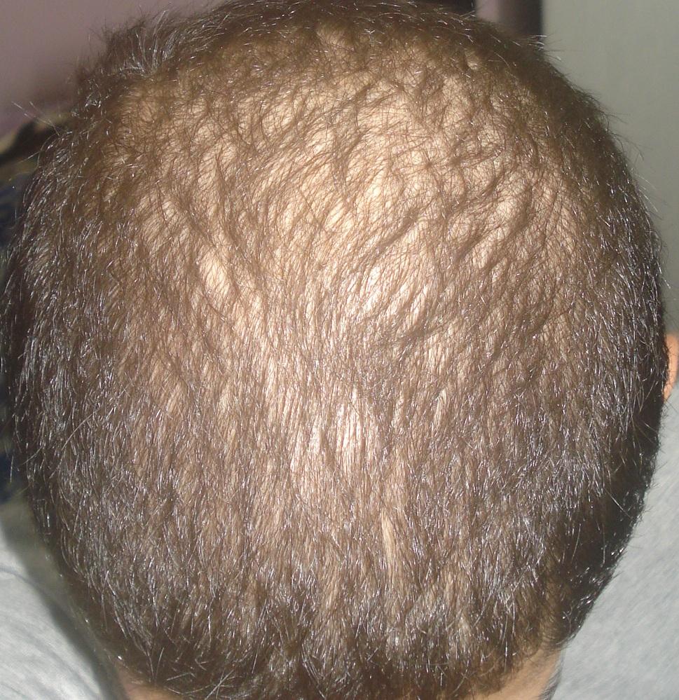 www.dustaan.com علت های ریزش مو و راه های درمان ان