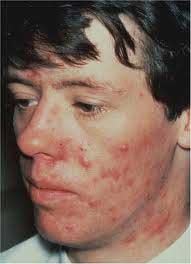 www.dustaan.com روش های موثر در درمان دائمی و قطعی جوش های صورت و بدن