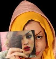 www.dustaan.com ماجرای اسید پاشی به صورت دختر 18 ساله +عکس