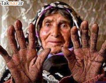 www.dustaan.com داستانک زیبا و جالب : دکتری که برای خواستگاری دختری رفت