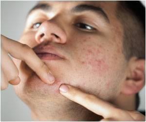 www.dustaan.com یک روش عجیب اما بسیار مفید برای درمان جوش صورت