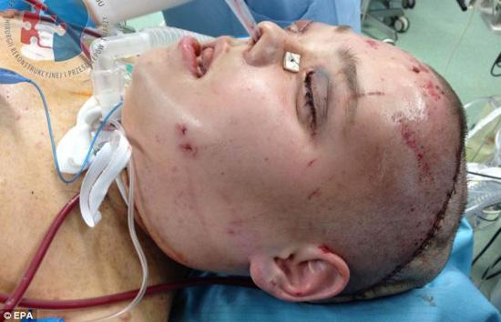www.dustaan.com تصاویری از چهره جدید دختر جوان پس از خارج کردن تومور