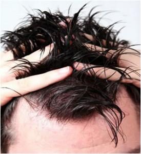 www.dustaan.com چربی کف سر باعث تقویت ریشه های مو می شود!