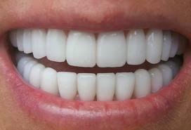 www.dustaan.com اگر می خواهید دندان هایی سفید , براق و صد البته سالم داشته باشید! بخوانید