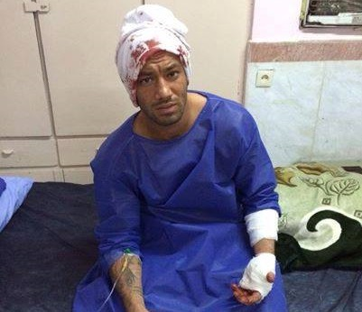 www.dustaan.com حمله خونین اوباش به امیر مقصود لو معروف به «تتلو»+ عکس