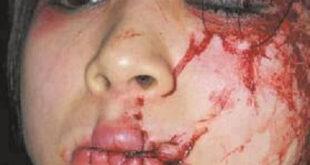 مرد سعودی لب ها و چشمان کارگر زن خارجی را بهم دوخت!/تصویر+18