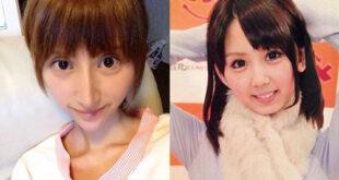 بازیگر زن با انجام عمل زیبایی به جای زیباتر شدن زشت ترشد! +تصاویر