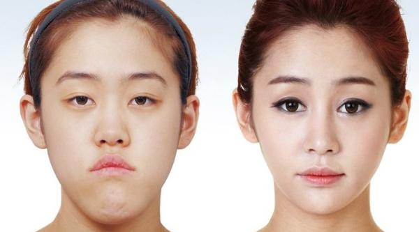 عدم شناسایی دختران کرهای بعد از جراحی زیبایی! +تصاویر