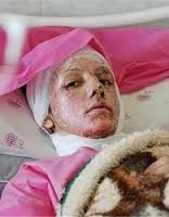 www.dustaan.com فیلم/ منتشرنشده از قربانی حادثه اسید پاشی دراصفهان (۱۸+)