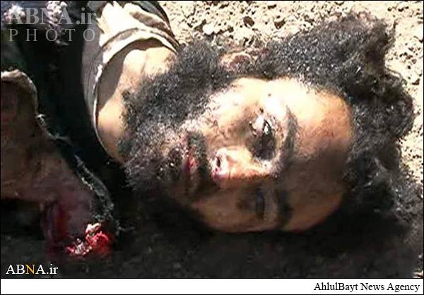 www.dustaan.com اجساد تکه تکه شده دو داعشی پس از عملیات انتحاری/تصاویر۱۸+