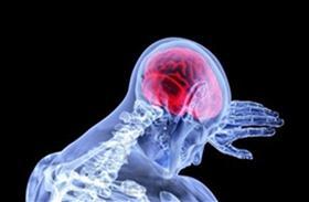 www.dustaan.com سردرد خود را با طب سنتی درمان کنید