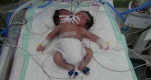 پیدا شدن چندین نوزاد دو سر در بیابانهای تهران