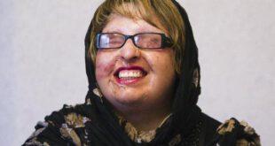 تصاویری دلخراش از قربانیان اسید پاشی