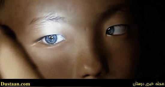 www.dustaan.com عکس: چشمان رنگی این پسربچه پزشک ها را متحیر کرده است!