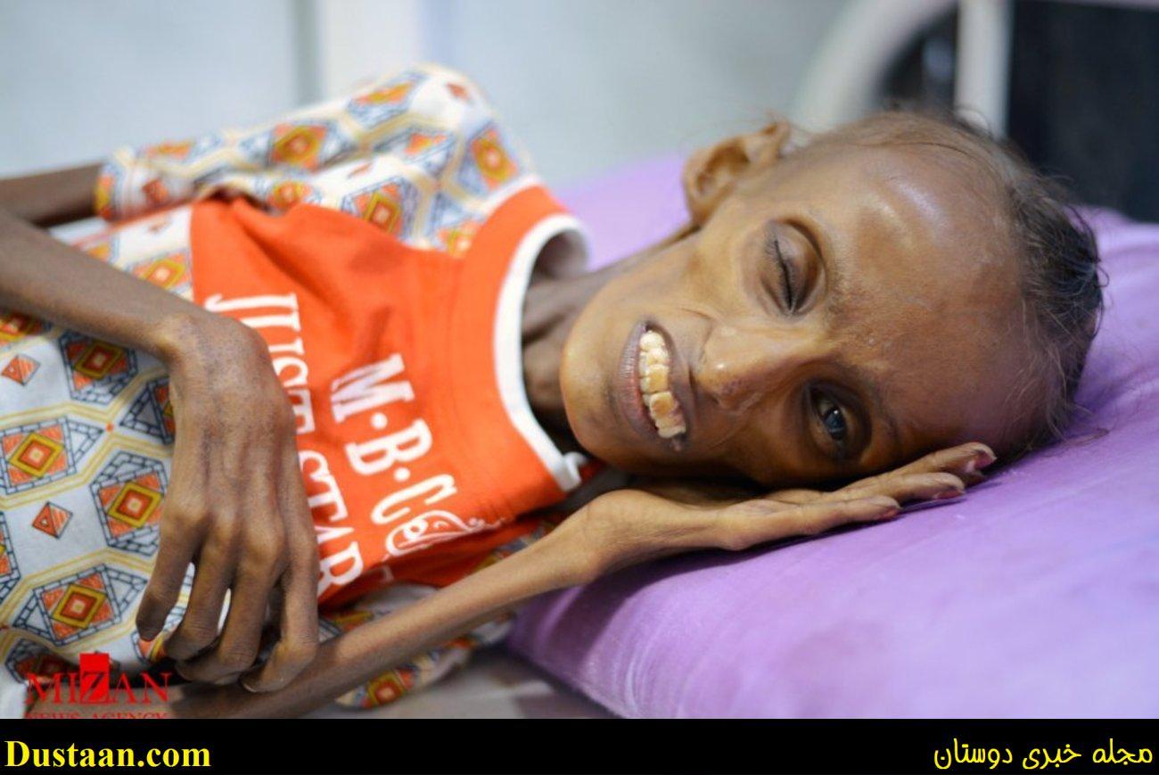 www.dustaan.com عکس های تکان دهنده از دختر نوجوان یمنی