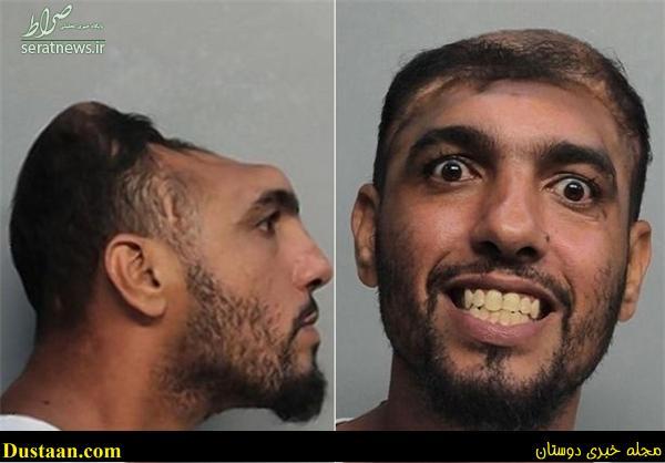 www.dustaan.com تصاویر: زندگی عجیب مردی با نصف سر!