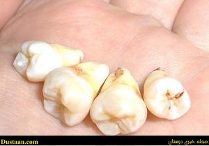 www.dustaan.com بهترین زمان برای جراحی دندان عقل
