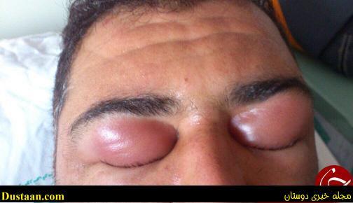 www.dustaan.com تصاویری منزجرکننده از بوتاکس و لیزر تقلبی در ایران (+۱۸)