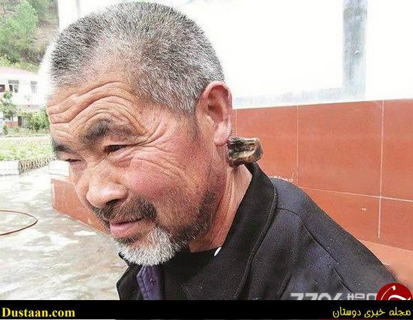 www.dustaan.com تصاویری عجیب از انسان های شاخ دار!