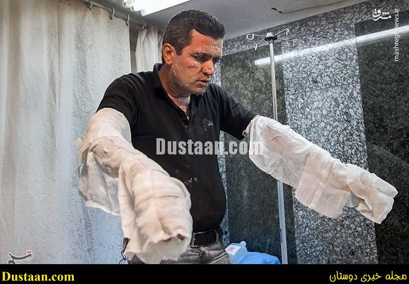 www.dustaan.com-dustaan.com-1882481 خطرات چهارشنبه سوری و حوادث دلخراش + عکس های + 18
