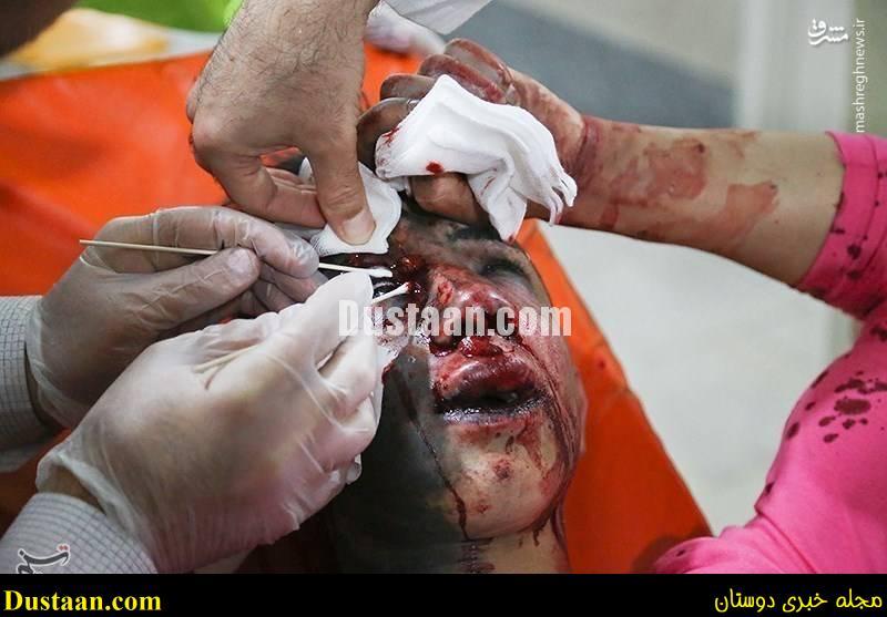 www.dustaan.com-dustaan.com-1882485 خطرات چهارشنبه سوری و حوادث دلخراش + عکس های + 18