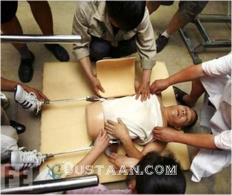 مردی که در پی تصادف دو نیم شد، اما زنده ماند! +عکس