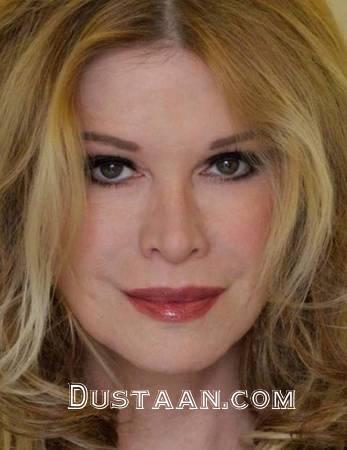www.dustaan.com زن 53 ساله ای که رکوردار جراحی زیبایی در جهان است +تصاویر