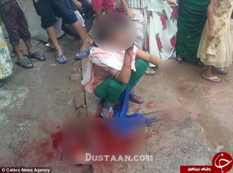 www.dustaan.com سرقت گوشی موبایل به قیمت قطع دست دختر ۱۵ ساله +تصاویر