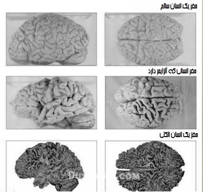 www.dustaan.com مقایسه مغز انسان عادی با یک انسان الکلی +عکس