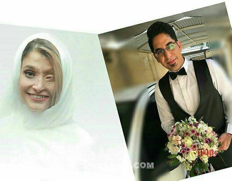 www.dustaan.com ازدواج مرضیه ابراهیمی قربانی اسید پاشی اصفهان +عکس