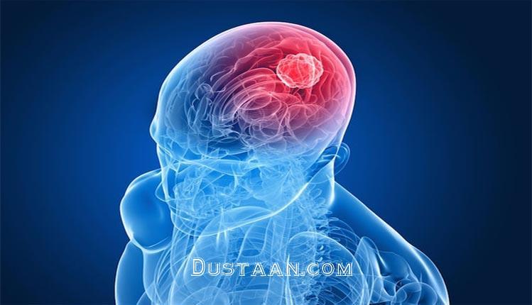 www.dustaan.com کم حرفی باعث نابودی مغز می شود!