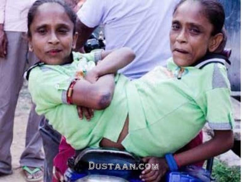 www.dustaan.com ازدواج عجیب ۲ خواهر بهم چسبیده در بنگلادش! +عکس