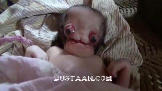 www.dustaan.com تولد نوزادی عجیب الخلقه در اوتار پرادش هندوستان +عکس