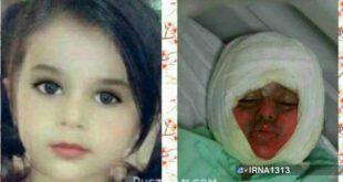 سقوط کودک سه ساله در دیگ خورش نذری