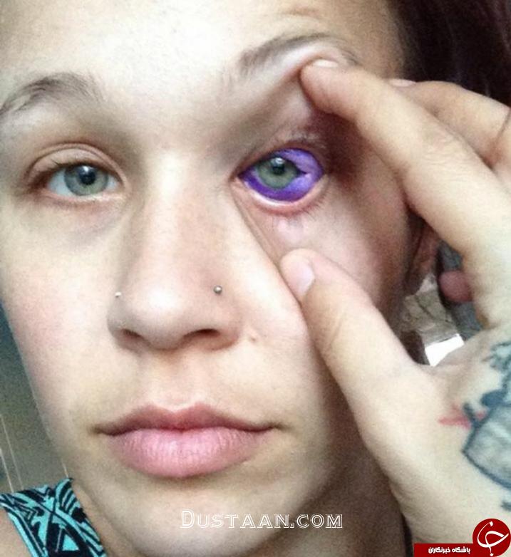 کور شدن احتمالی دختر جوان در پی انجام عملی احمقانه + تصاویر