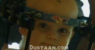 در یک عمل جراحی شگفت انگیز / سر جدا شده کودک 16 ماهه پیوند شد +عکس
