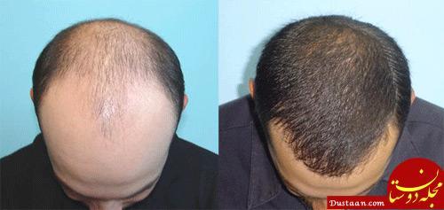 www.dustaan.com کاشت مو چیست؟