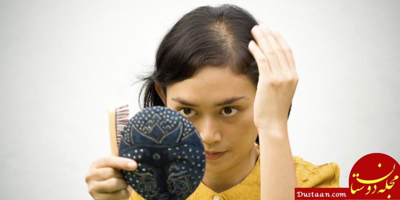 www.dustaan.com بهترین راهکار طبیعی برای درمان ریزش موی جلوی سر دربانوان + تصاویر